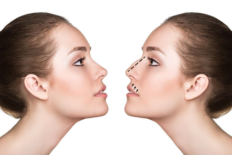 chirurgia estetica del naso firenze